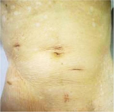 急性虫垂炎 内視鏡外科手術